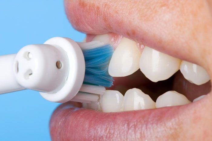 Lo spazzolino elettrico, ideale contro tartaro e placca